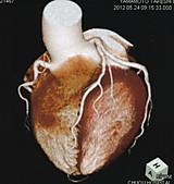 Heartct